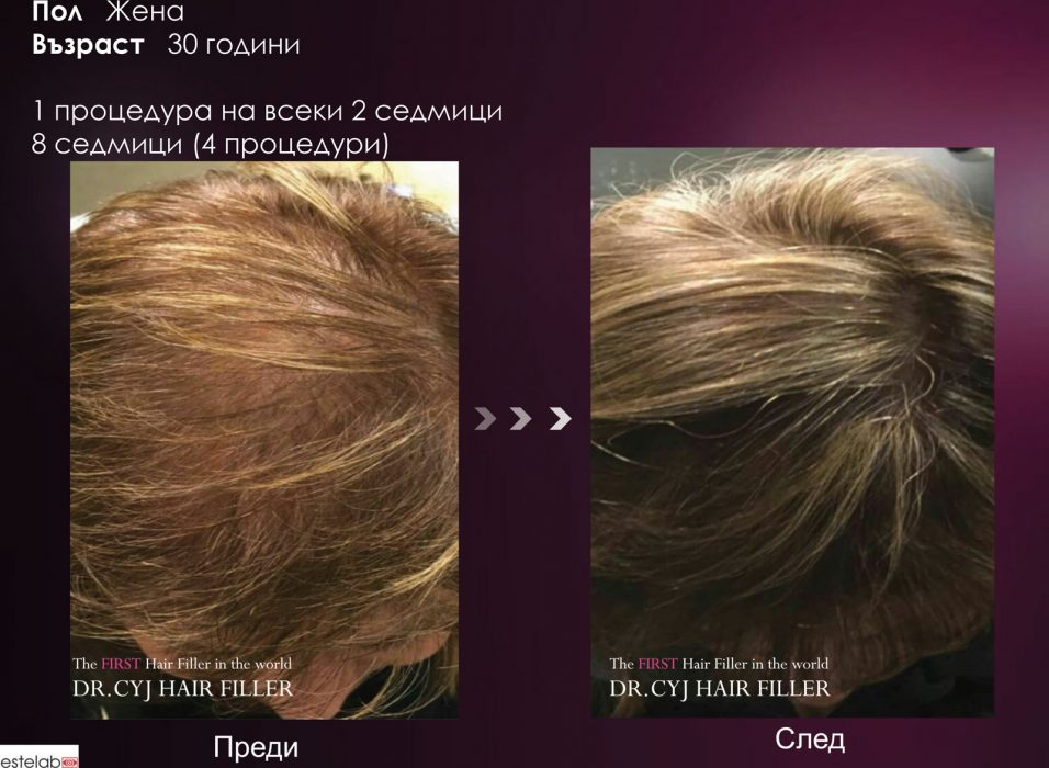 DR.CYJ-HAIR-FILLER_result02