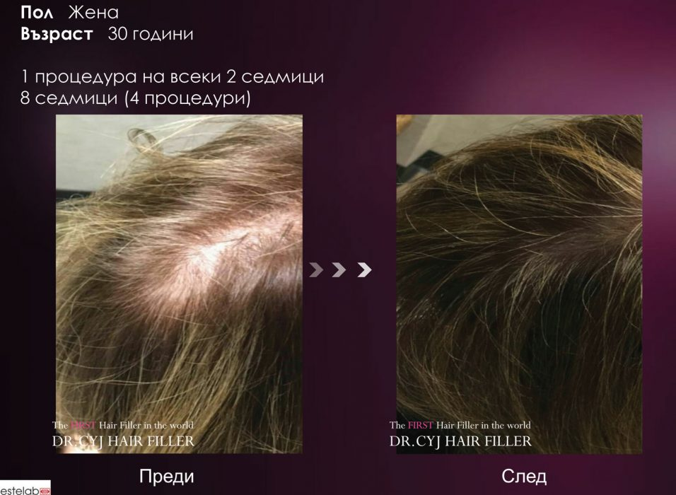 DR.CYJ-HAIR-FILLER_result03